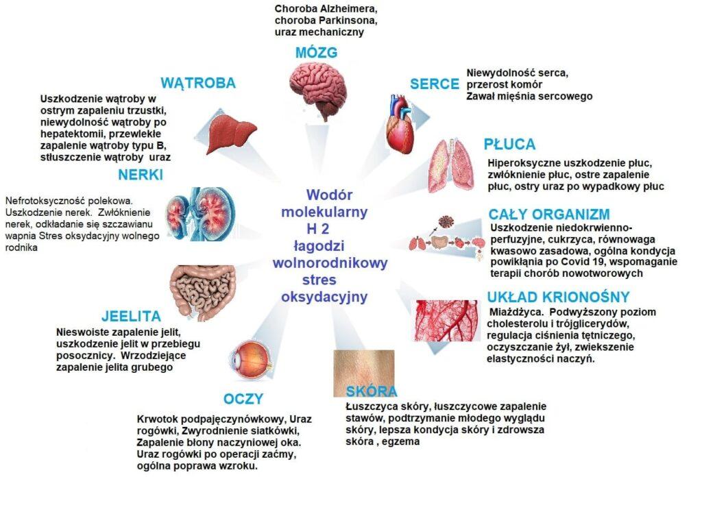opis chorób